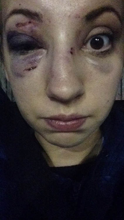 Manchester HannahFryer Young Attack Greatermanchester