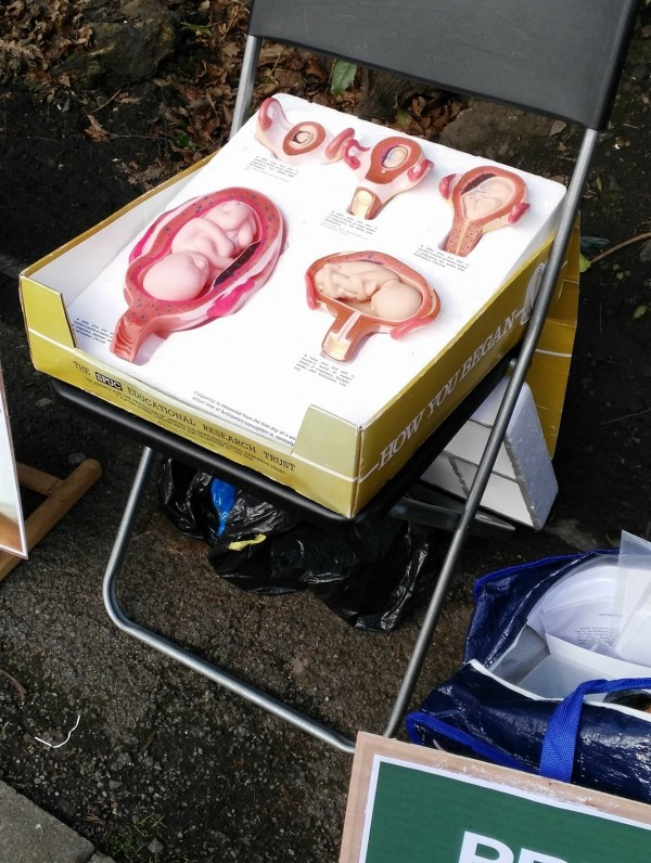 Fetus diagrams used by anti-abortion groups